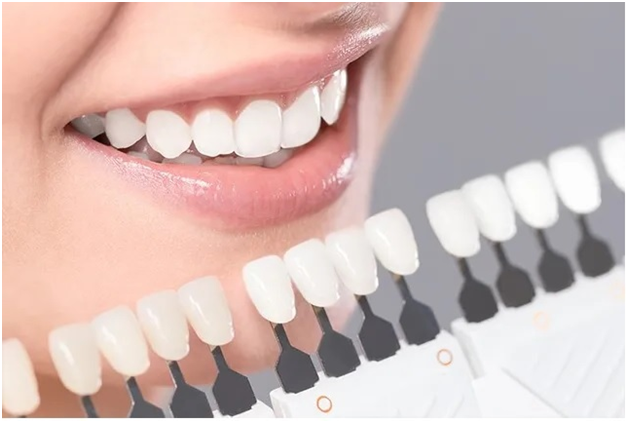 All About Dental Veneers That You Must Know